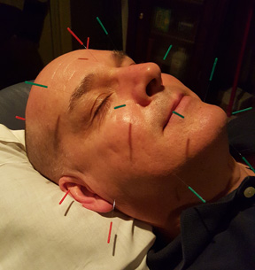 Acupuncture Facelift Facial Rejuvenation Cosmetic Acupuncture